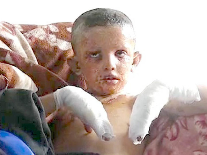 Erdogan's war crimes: the truce broken by Turks with 18 dead. White phosphorus against children