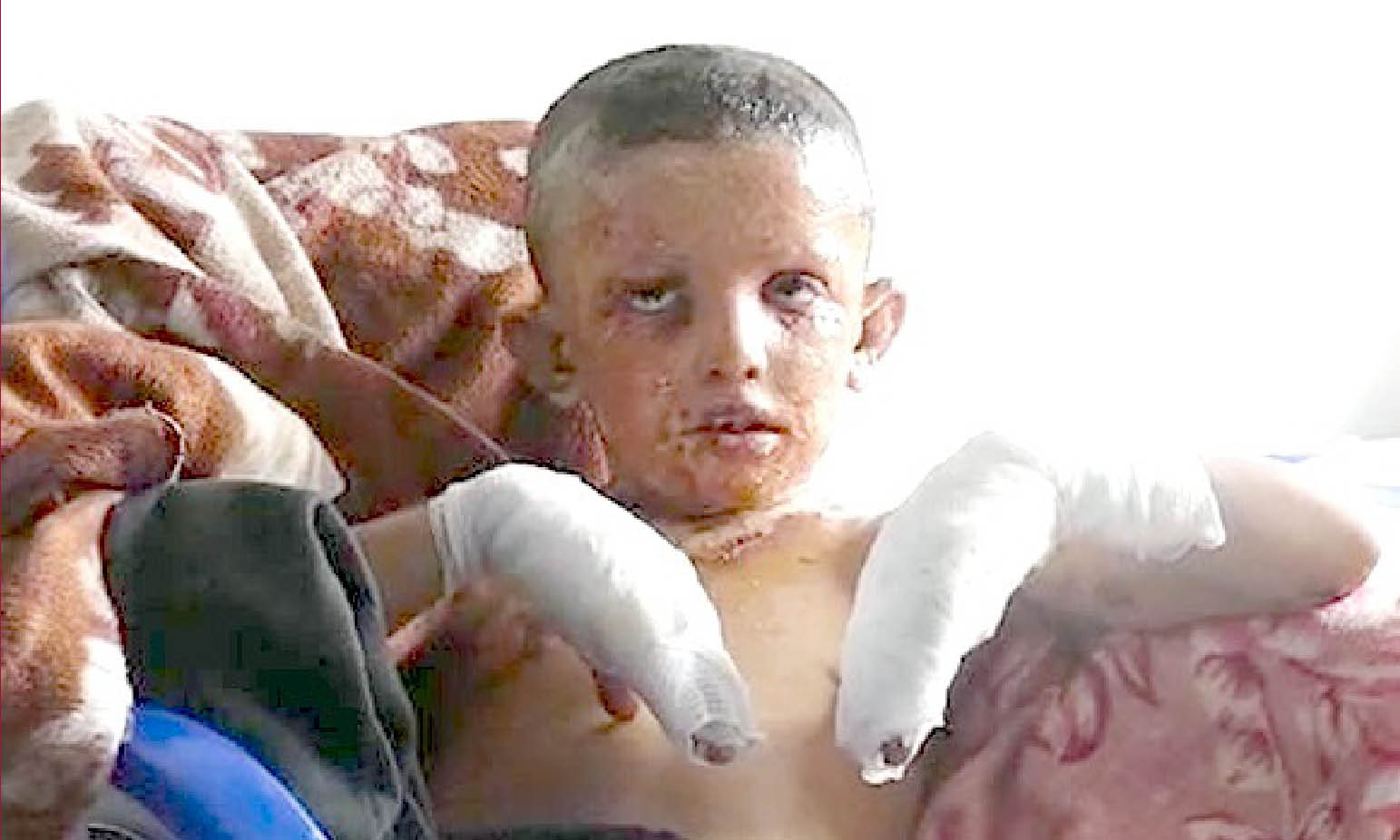 Erdogan's war crimes: the truce broken by Turks with 18 dead. White phosphorus against children
