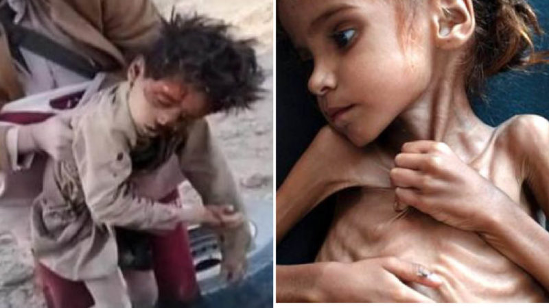 """YEMEN, ATTACCO SAUDITA FA STRAGE DI 19 BAMBINI. Migliaia di morti per le bombe """"italiane"""" e per la fame"""
