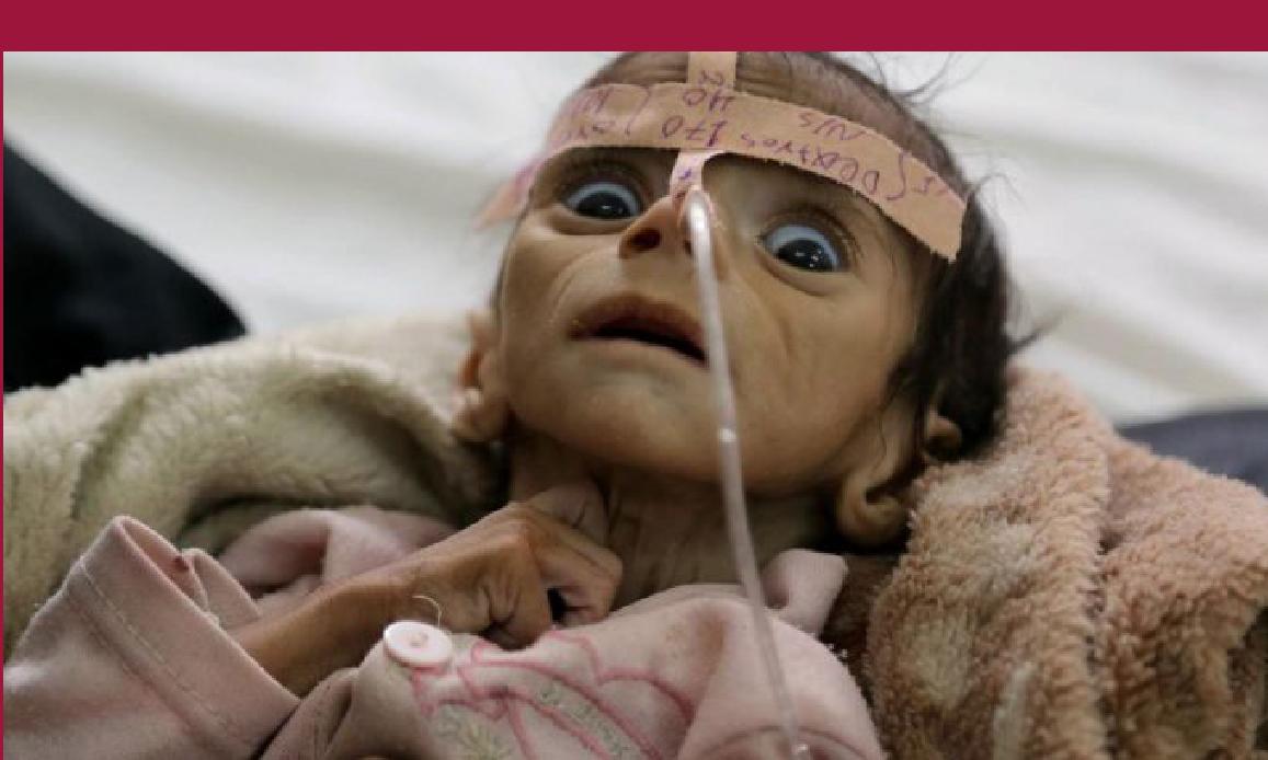 YEMEN: SAUDIT BOMB KILLS CHILDREN IN HOSPITAL