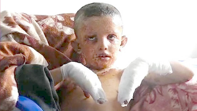 SIRIA: I CRIMINI  DI GUERRA DI ERDOGAN: tregua rotta dai Turchi con 18 vittime. Fosforo bianco contro i bimbi